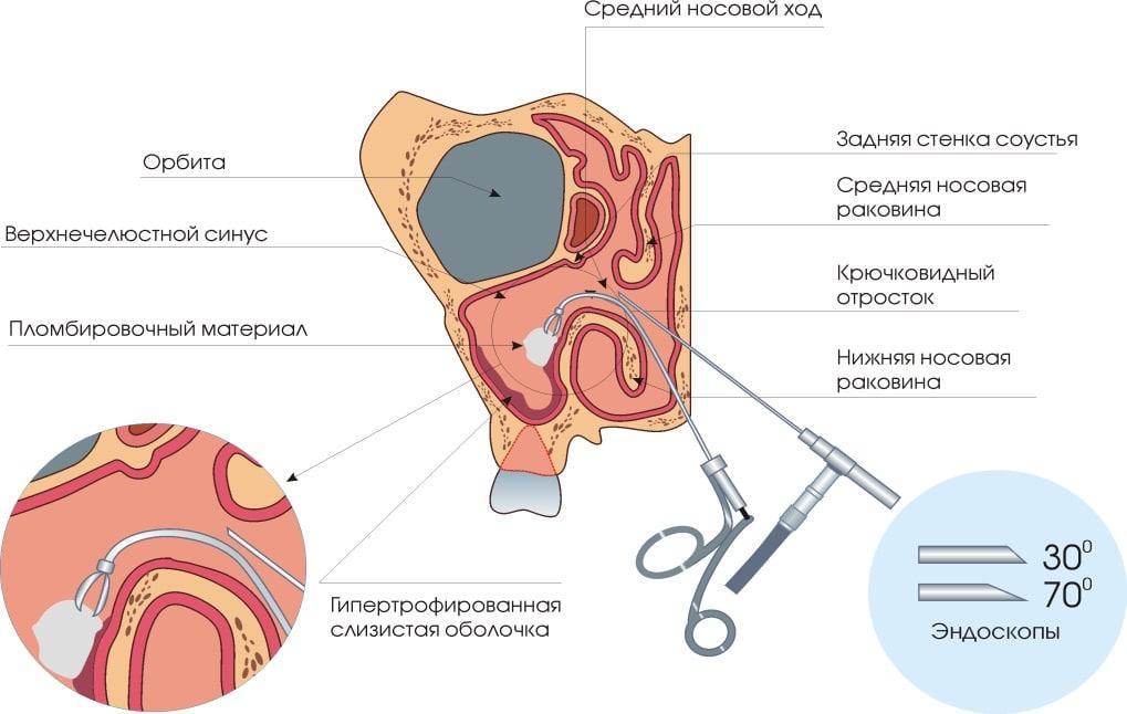удаление кисты в гайморовой пазухе эндоскопом