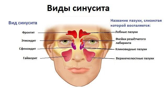 полипозный этмоидит симптомы лечение у взрослых