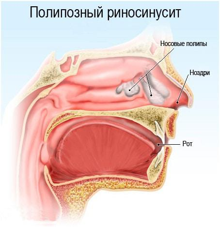 острый этмоидит симптомы и лечение у детей