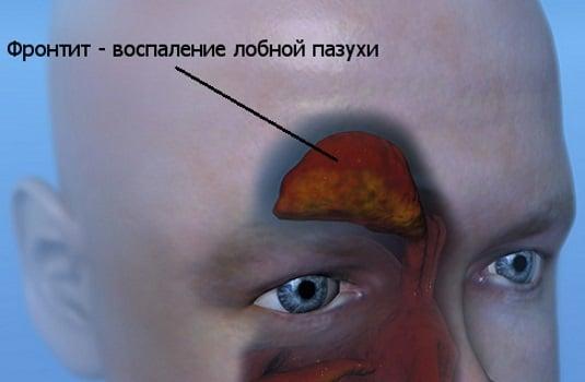 острый фронтит симптомы и лечение у взрослых