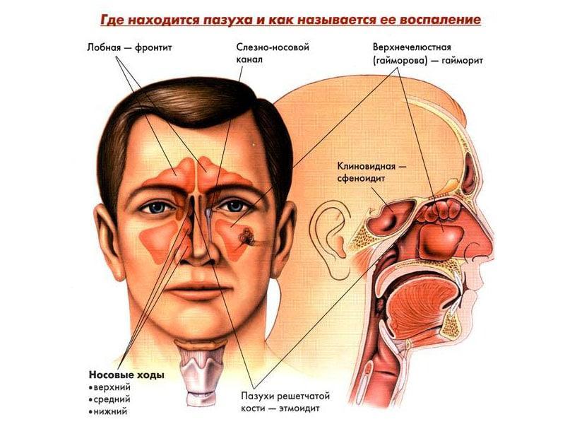 может ли гайморит быть без насморка симптомы