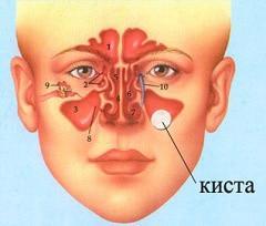 к чему может привести киста гайморовой пазухи симптомы лечение