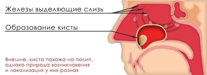 Одонтогенная киста гайморовой пазухи