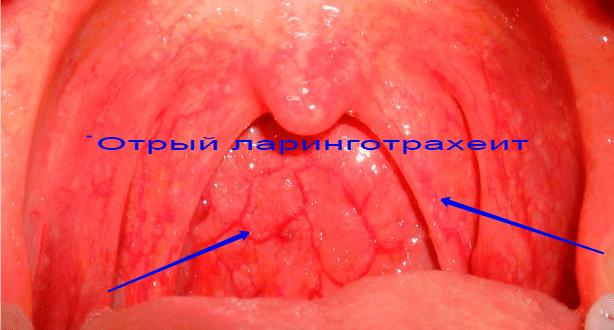 острый стенозирующий ларинготрахеит симптомы и лечение