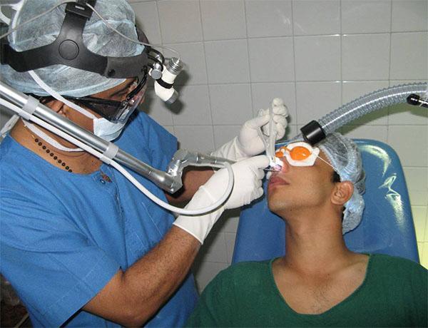 киста гайморовой пазухи лечение без операции