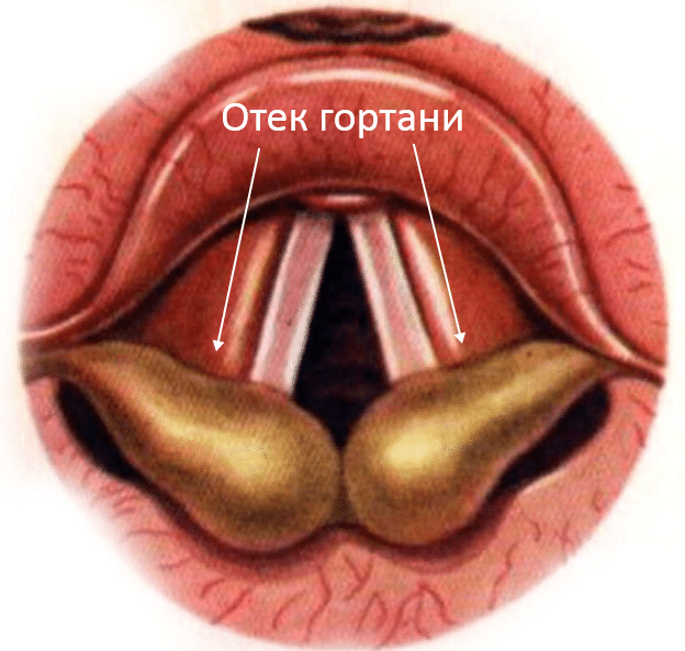 аллергический отек гортани фото