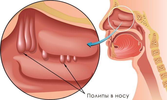 лечение полипов в носу без операции