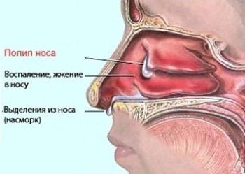 чем и как лечить полипы в носу