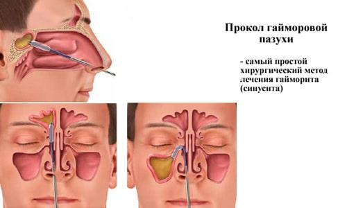 Лечение гайморита после прокола в домашних условиях