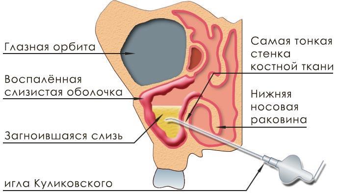 пункция носа при гайморите