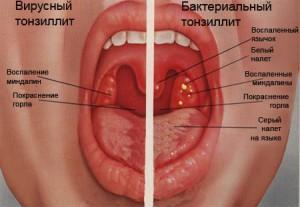 воспаление миндалин симптомы лечение