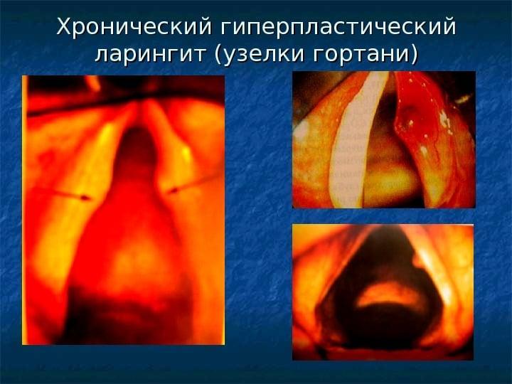 хронический гипертрофический ларингит