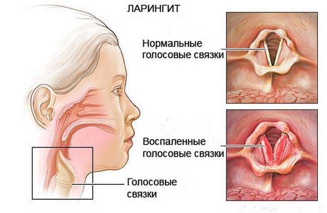 ларингит у детей симптомы и лечение препараты