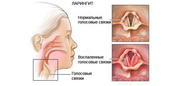 Reasons for chronic hoarseness in adults