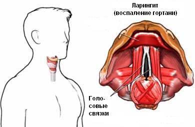 как снять отек горла при ларингите