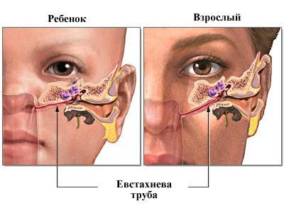 Симптомы отита у детей
