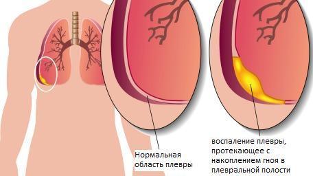 Pleuritis Natural Treatment