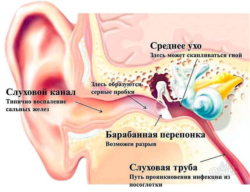 Болит ухо попала вода что делать в домашних условиях 660