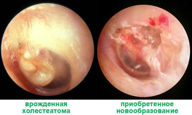 holesteatoma-uha
