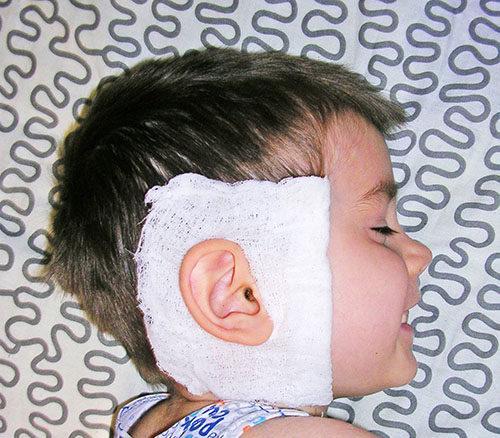 Как сделать компресс за ухом 259