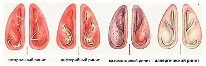 rinit-sukhoy