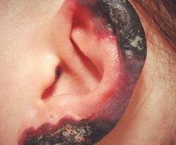 Рожистое воспаление уха