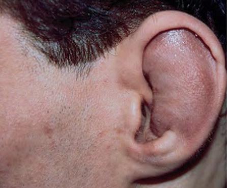 Сломанные уши: почему они так выглядят, как понять что сломал ухо