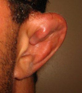 симптомы сломанного уха фото