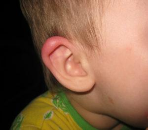 покраснение за ухом у ребенка