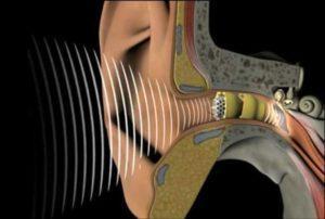 слуховые карманные аппараты-4