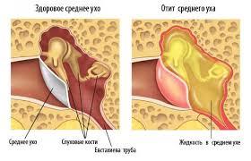 мазь ушная для человека