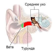 почему у беременных закладывает уши-6