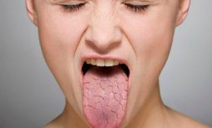 сухость во рту причины какой болезни ночью