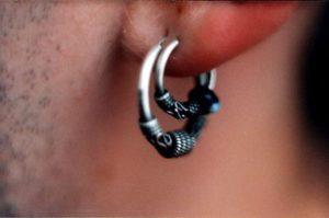 перихондрит ушной раковины фото