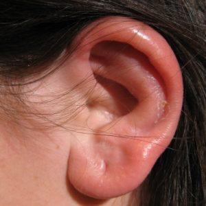 баротравматический отек уха