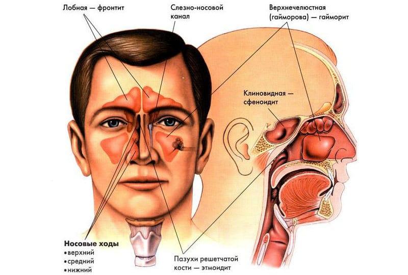 операция на гайморовой пазухе