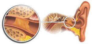 пробки в ушах лечение в домашних условиях