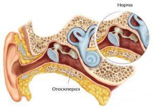 отосклероз уха