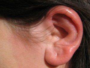 перихондрит ушной раковины-1