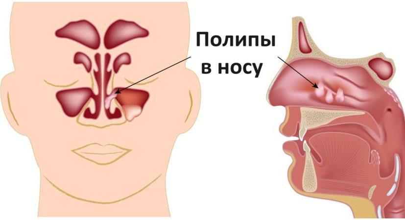 полип в гайморовой пазухе лечение