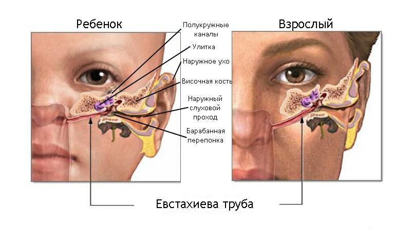 ушная инфекция симптомы