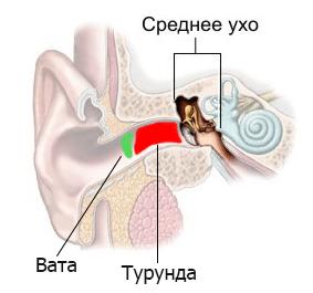 можно ли сульфацил натрия капать в уши