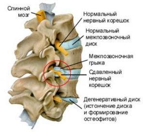 Упражнения от шума в голове и ушах