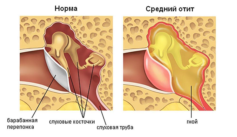 симптомы болезни среднего уха-1-2-3