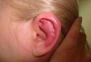 симптомы болезни среднего уха-1