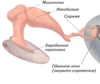 болезни среднего уха