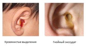 Течет из уха ребенка что делать