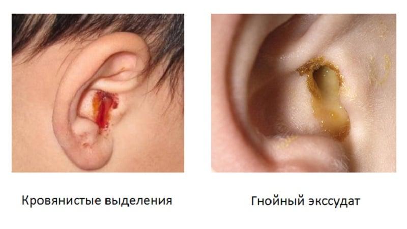 течет из уха у ребенка