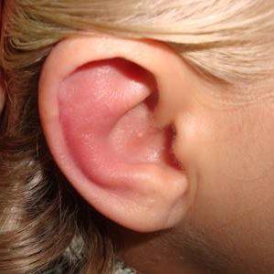 гиперемия слухового прохода что это такое