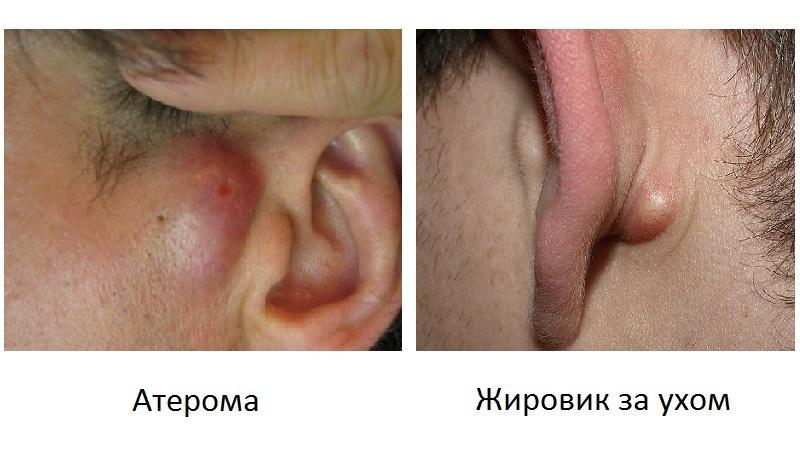 шишка около уха ближе к щеке